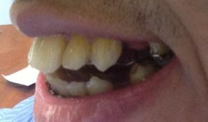 teethprogress1